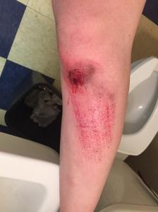 My left leg.